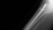 Törött lábbal fejezte be a futóversenyt