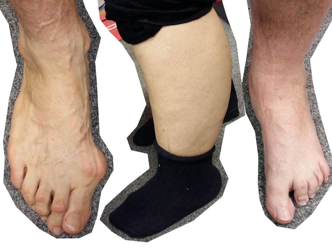 Minden lábfejre egyedileg szabható a sícipő