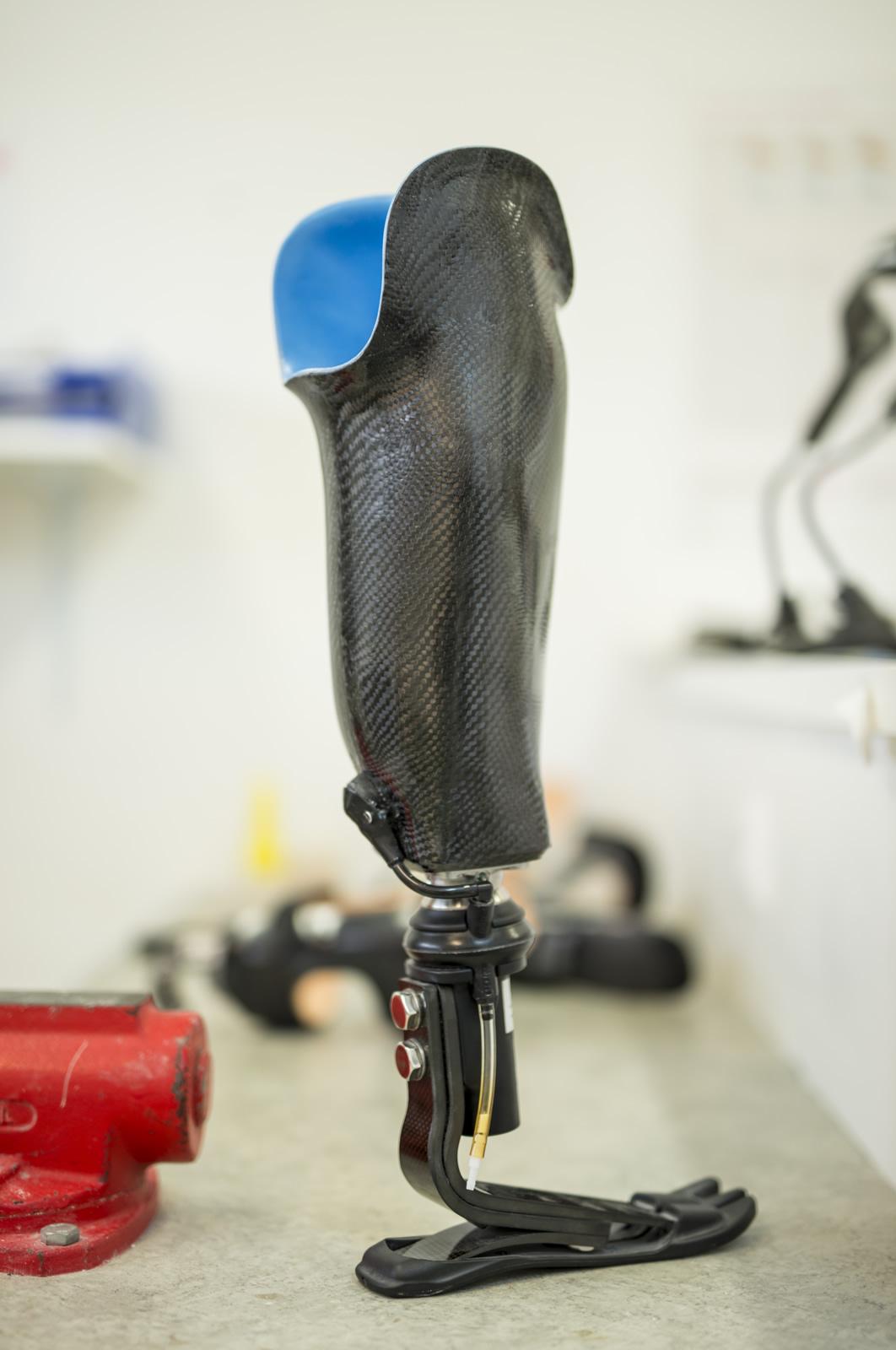 Művégtag protézis Forrás: Dohmeier